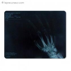 Tapis de souris cliché radiographique